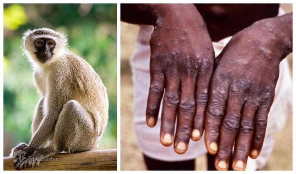 علائم آبله میمون و ابتلا به ویروس میمونی چیست؟